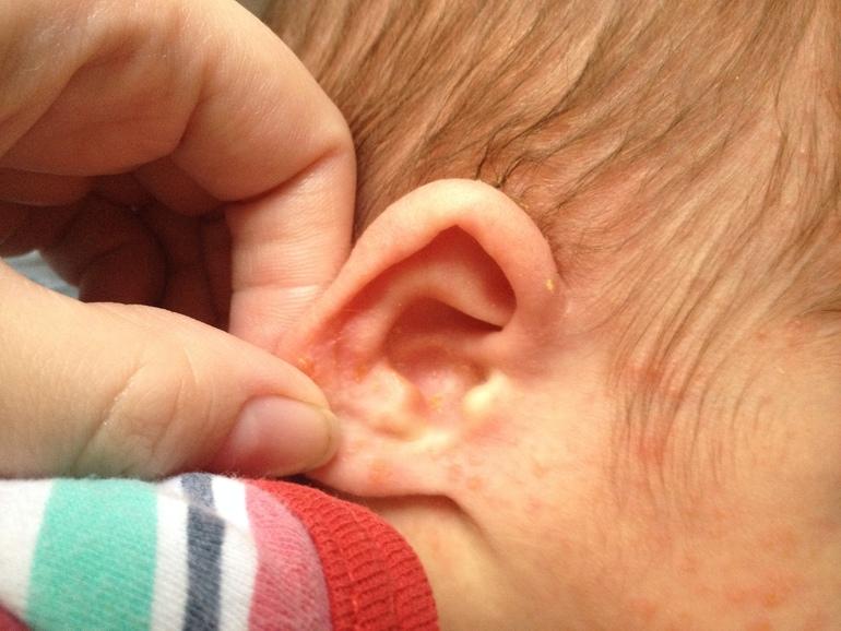 Сыпь у грудного ребенка на ушах