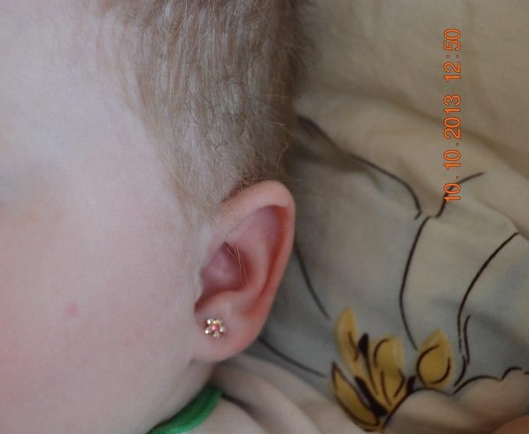 неровно прокололи уши ребенку фото