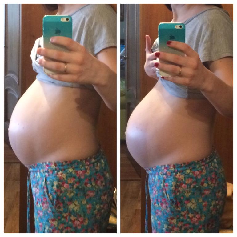 Как выглядит опущенный живот у беременных 102