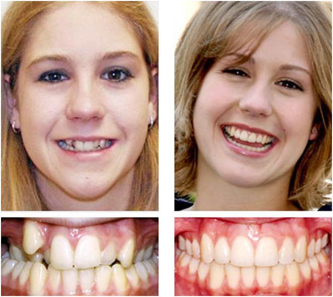 Подросток и у меня мало зубов