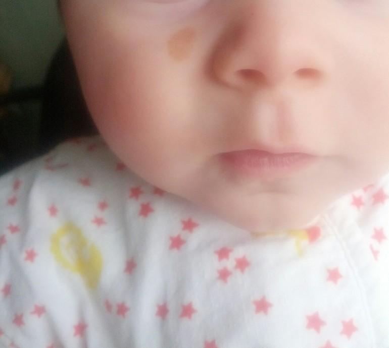 невус у новорожденного фото