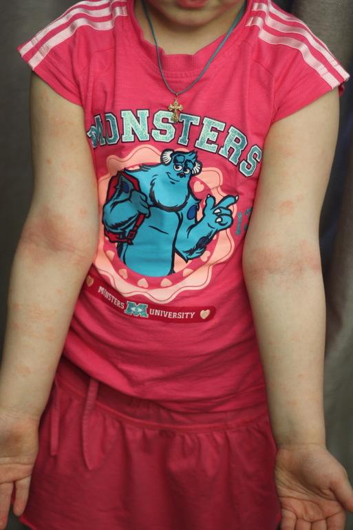 сильнейшая пищевая аллергия