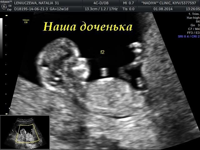Скрининг на 11 неделе беременности отзывы