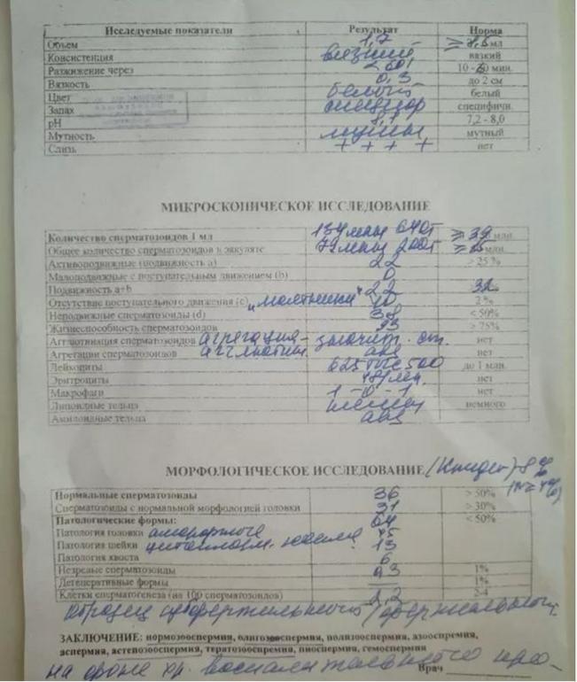 porno-konchila-devushka-tolstie