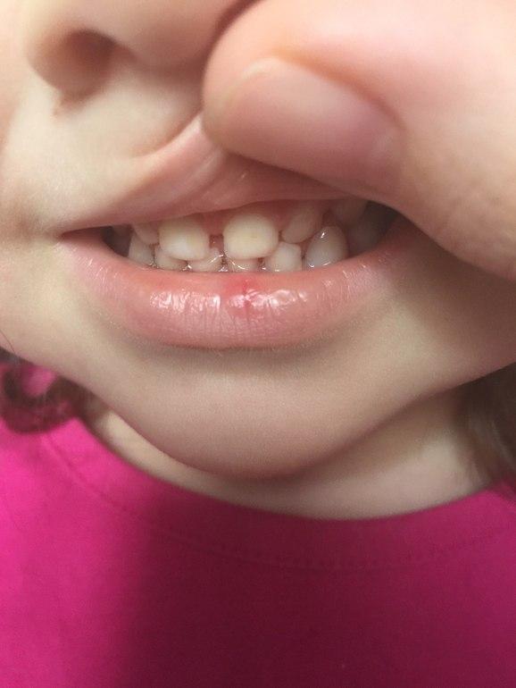 Дырки на зубах в 1годик
