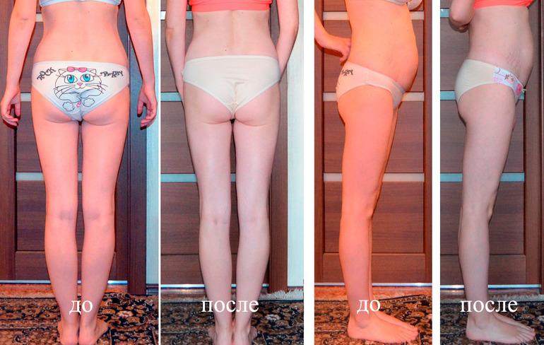 Реально Ли Похудеть Ногам. Как быстро похудеть в ногах. Упражнения, обертывания, питание на неделю, массаж