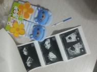 Фото УЗИ на 4 неделе беременности