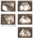 Фото УЗИ на 26 неделе беременности