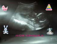 Фото УЗИ на 19 неделе беременности