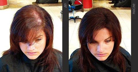 Уникальное средство для роста волос, Женский
