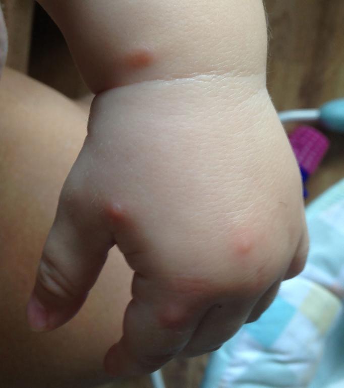 пищевая аллергия на руках и ногах