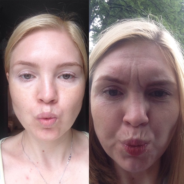 Отек лица при похудении